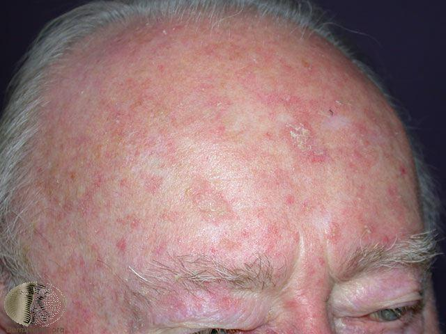 Actinic keratoses Pre cancers Treated with freezing or