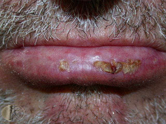 Actinic cheilitis Watch closely for Squamous