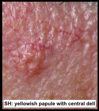 Sebaceous Hyperplasia vs.