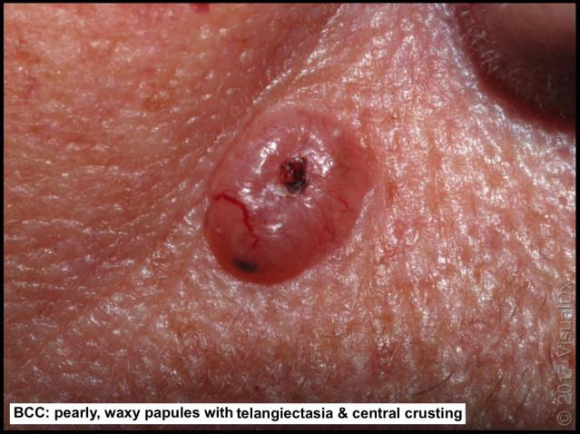 multiple similar lesions do not bleed or form hemorrhagic crust basal cell carcinoma