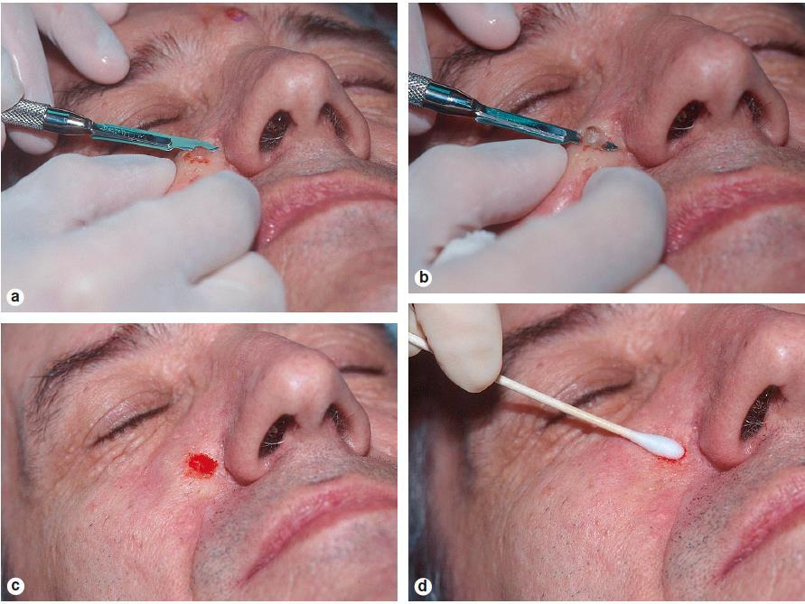 Shave Biopsy Technique 1. note location, triangulate, &/or digital photograph 2. prep skin with alcohol 3. anesthesia 1% lidocaine with epi (dermal injection & generally <1cc) 4.