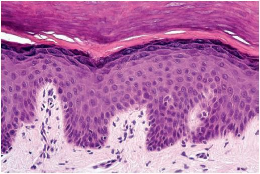 Basal Cell Carcinomas most common skin cancer arise from the basal
