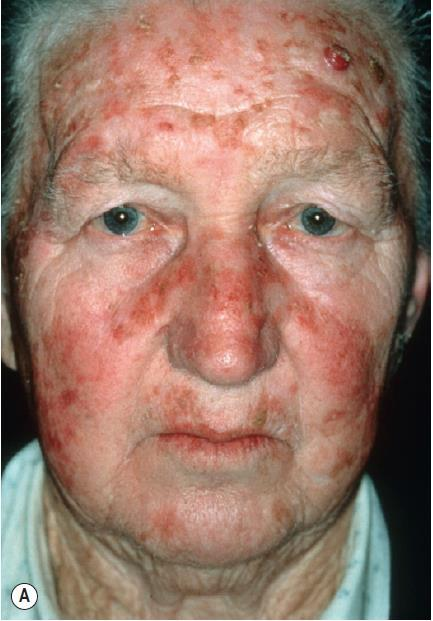 What is the diagnosis? A. actinic keratoses gritty sandpaper-like macules & papules with red base B. seborrheic keratoses stuck-on papules C.