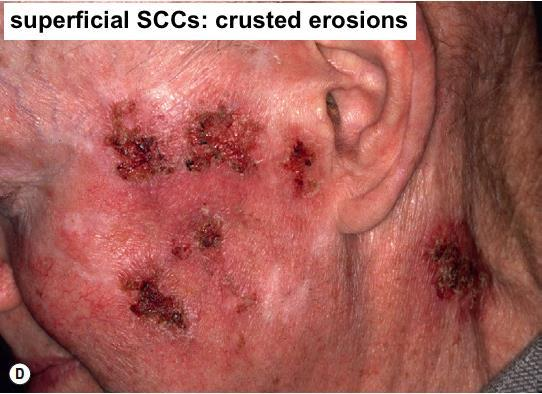 or nodule cutaneous horns