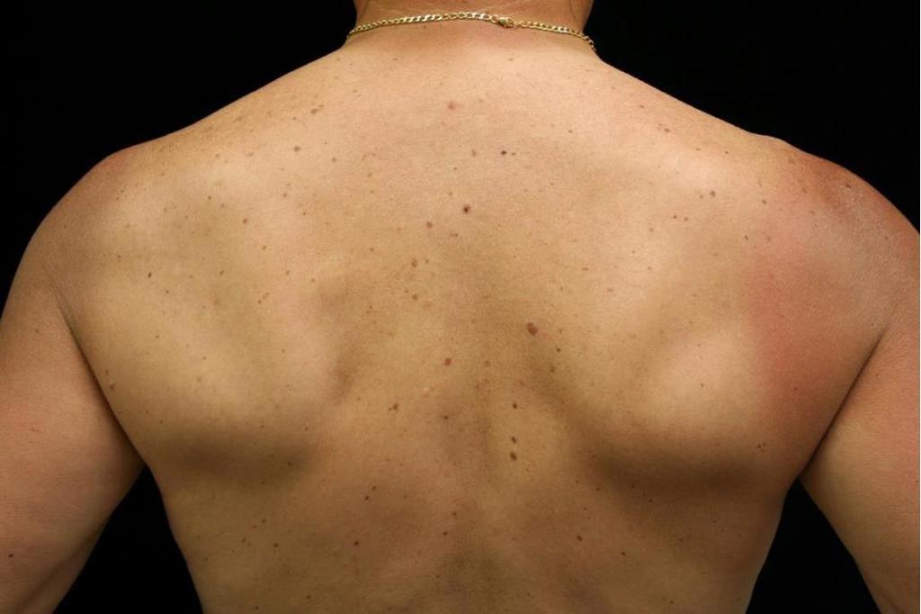 A 55-yo white male presents to your clinic and said he is there because his wife wanted you to check out his moles on his back.
