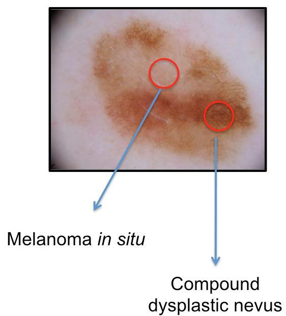 You find a lesion that you are concerned is a melanoma & plan to biopsy it melanocytic lesions that look