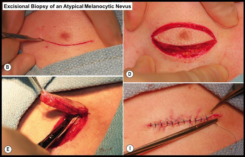 excisional biopsy involves full thickness incision to the fat with the entire lesion captured