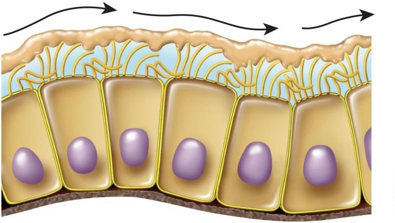 Cystic Fibrosis Cystic fibrosis hereditary disease in which cells make chloride pumps, but fail to install them in the plasma membrane Chloride pumps fail to create adequate saline layer on cell