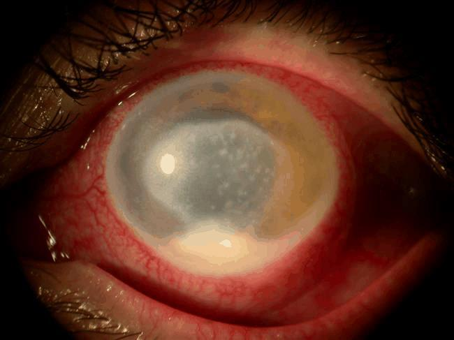 Acanthamoebic keratitis Keratitis Begins with a foreign-body sensation followed by