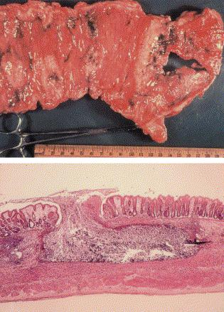 Disease Amebic colitis -> amebic dysentery (Intestinal amoebiasis) Hematogenous spread to