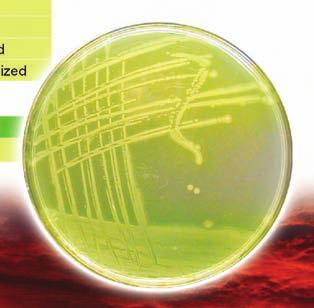 11999 Reinforced Medium for Clostridia, harmonized 21493 Columbia Agar Base, harmonized Escherichia coli 37775 MacConkey Agar, harmonized 44448 MacConkey Broth, harmonized Pseudomonas aeruginosa