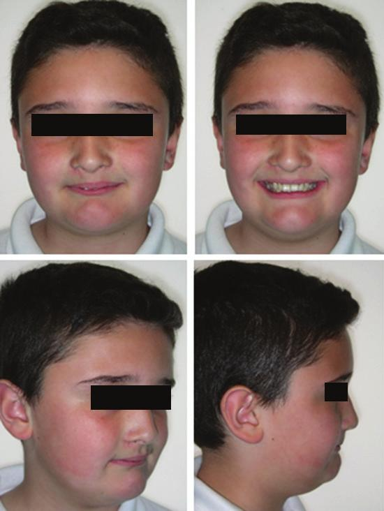 University, Saudi Arabia Abstract The following case report presents an effective orthodontic treatment for an eleven year old male who reported with mild Skeletal Class II jaw base, Class II