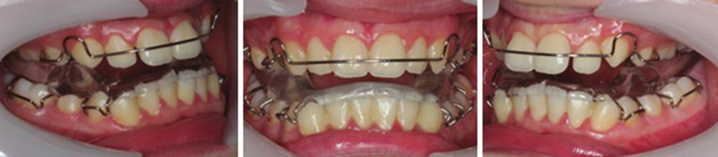Intra- oral assessment revealed that the patient had mixed dentition with mild gingivitis, mild crowding in upper and lower arches, proclined upper incisors and retroclined lower incisors (Figure 2).