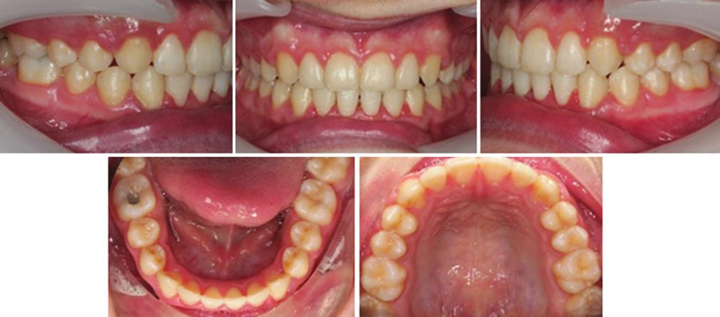 Growth modification with use of functional appliance proclined the lower incisors by 2 to the mandibular plane.
