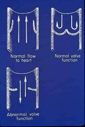 Venous Valvular Function Valve leaflets allow unidirectional flow, upward or inward Dilation of vein wall