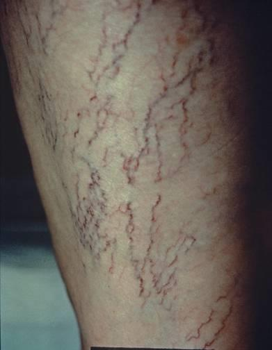 Telangiectasias Also known as spider veins due to their appearance Very common, especially in women Increase in frequency with age 85% of