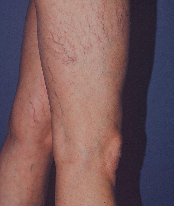 Lateral Subdermic Plexus Very common, especially in women Superficial veins