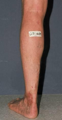 Less frequent than Great Saphenous involvement Varicosities may be seen on the posterior calf and