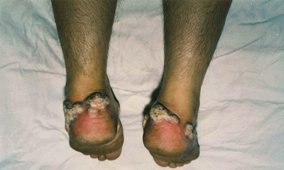Serbian Journal of Dermatology and Venereology 2014; 6 (2): 73-80 M. Paravina Lichen planus hypertrophicus other parts of the foot.
