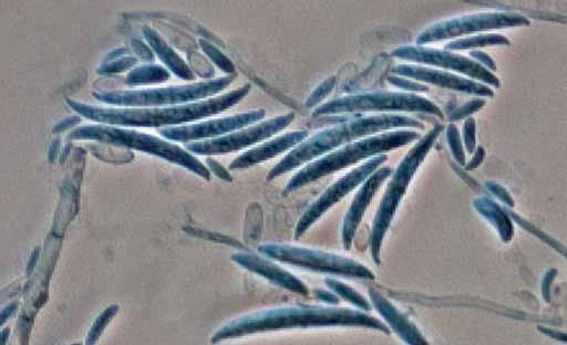Descriptions of Medical Fungi 101 Fusarium oxysporum complex a 15 µm b 15 µm Fusarium oxysporum
