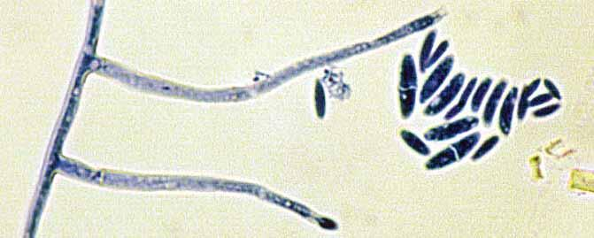 102 Descriptions of Medical Fungi The Fusarium solani complex contains at least 60 species and accounts for about 50% of human infections caused by fusaria (Guarro 2013, Tortorano et al.