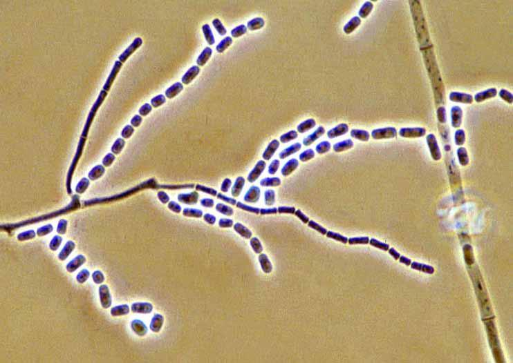 104 Descriptions of Medical Fungi Geotrichum candidum Link. 15 µm 15 µm Geotrichum candidum arthroconidium formation.
