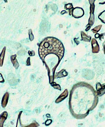 conical-shaped columella and pronounced apophysis (arrow), and (c) Grocott s methenamine silver