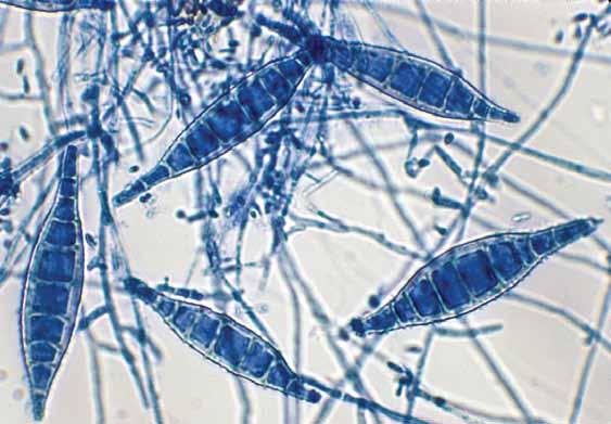 128 Descriptions of Medical Fungi Microsporum canis Bodin 20 µm Microsporum canis typical spindle-shaped macroconidia.