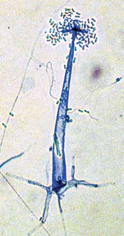 Sporangiophores are typically erect, delicate, 80-250 µm in height, 6-20 µm wide at the base, arising from rhizoids or bulbous swellings on the substrate hyphae and terminating with a compact cluster