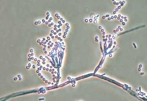 Descriptions of Medical Fungi 147 Paecilomyces marquandii (Massee) Hughes Paecilomyces marquandii is a soil fungus of worldwide distribution from temperate to tropical regions. RG-1 organism.