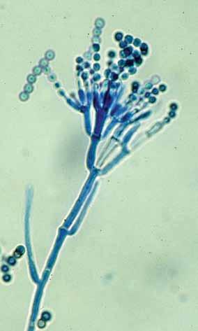152 Descriptions of Medical Fungi Penicillium Link:Fries For identification, isolates are usually inoculated at three points on Czapek Dox agar and 2% Malt extract agar and incubated at 25 O C.