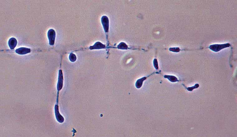 Descriptions of Medical Fungi 5 Aphanoascus fulvescens is a soil-borne keratinolytic ascomycete that occasionally causes dermatomycosis in humans and animals. RG-2 organism.