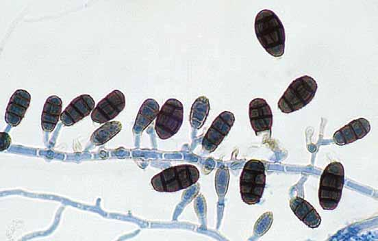 Descriptions of Medical Fungi 159 The genus Pithomyces contains about 50 species commonly isolated from a wide range of plant material, also from air, soil, hay, sawn timber and ceiling plaster.