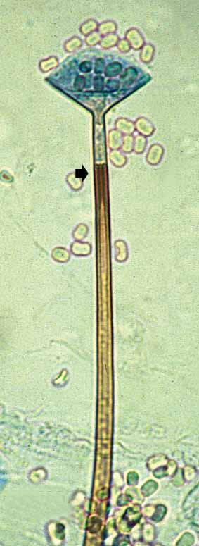 sporangiophore, and (b) mature sporangium showing distinct funnelshaped apophyses, columellae, and a conspicuous pigmented subapical