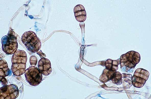 Descriptions of Medical Fungi 189 Most species of Stemphylium are plant pathogens with occasional isolates from soil, they are rarely seen in the clinical laboratory. RG-1 organism.