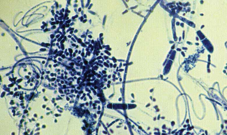 Descriptions of Medical Fungi 203 Trichophyton
