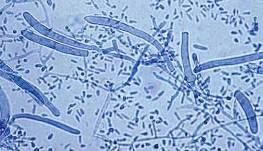 rubrum showing slender clavate microconidia and
