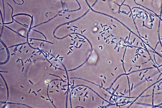 bean-shaped macroconidia, (c) terminal