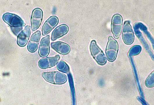 224 Descriptions of Medical Fungi Trichothecium roseum has a worldwide distribution and is often isolated from decaying plant substrates, soil, seeds of corn, and food-stuffs (especially flour