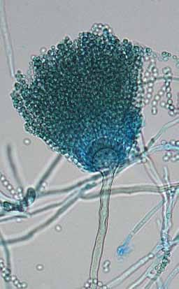 20 Descriptions of Medical Fungi Aspergillus lentulus Balajee & Marr Antifungal Susceptibility: A. lentulus (Australian National data); MIC µg/ml.