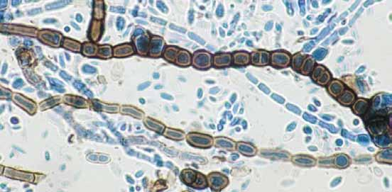 Descriptions of Medical Fungi 27 Aureobasidium pullulans has a worldwide distribution and is usually isolated as a saprophyte, occasionally from skin and nails.