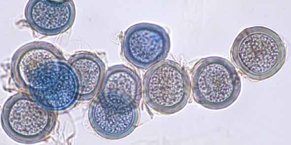 28 Descriptions of Medical Fungi Synonymy: Basidiobolus meristosporus Drechsler. Basidiobolus heterosporus Srinivasan & Thirumalachar. Basidiobolus haptosporus Drechsler.
