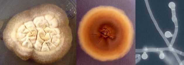 32 Descriptions of Medical Fungi Blastomyces dermatitidis Gilchrist & Stokes At present the genus Blastomyces contains two species, Blastomyces dermatitidis and Blastomyces gilchristi, which are