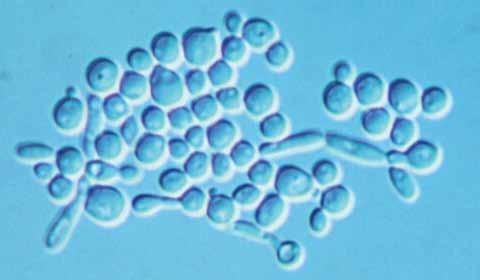 34 Descriptions of Medical Fungi Candida Berkhout The genus Candida is characterised by globose to elongate yeast-like cells or blastoconidia that reproduce by narrow-based multilateral budding.