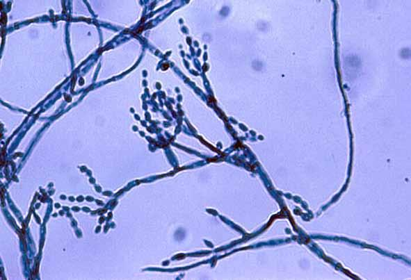 Descriptions of Medical Fungi 55 Cladophialophora carrionii (Trejos) de Hoog et al. 10 μm Cladophialophora carrionii conidiophores and conidia. Antifungal Susceptibility: C.