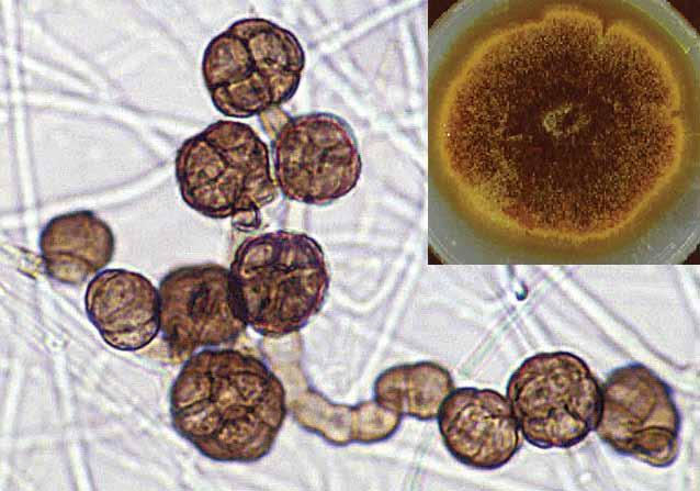 84 Descriptions of Medical Fungi Synonymy: Epicoccum purpurascens Ehrenb. ex Schlecht.