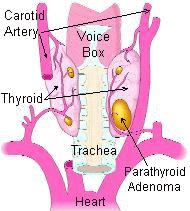 Parathyroid Disorders Role of parathyroid glands: control calcium within the blood Four parathyroid glands make more or less parathyroid hormone (PTH) in