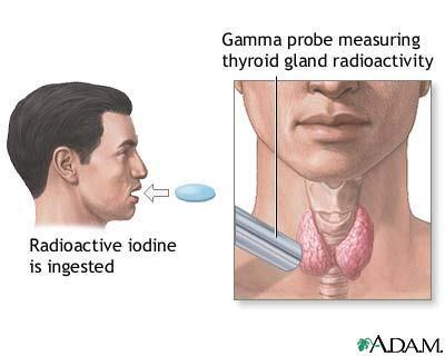 การร กษา Hyperthyroid ท เก ดจากโรค Graves' disease Radioactive iodine ( 131 I) Advantages Disadvantages Comment Cure of hyperthyroidism Lowest cost, before adjustment for quality of life Permanent