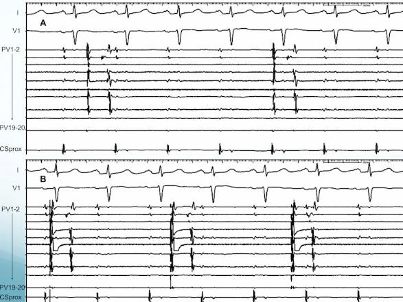 S588 Heart Rhythm, Vol. 15, No.