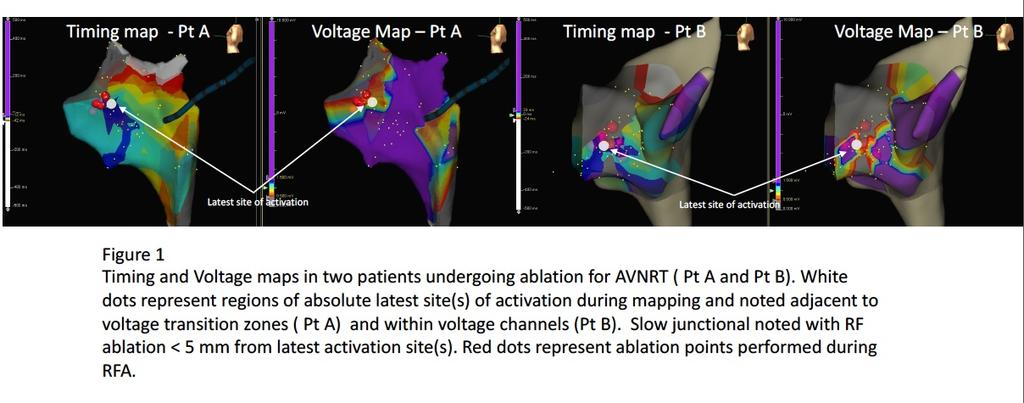 mapping systems. Targeting of latest site(s) of activation in sinus rhythm with Ablation in conjunction with voltage mapping characteristics has not been defined.